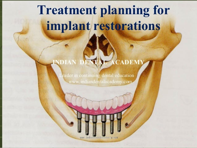 Treatment planning for implant restorations INDIAN DENTAL ACADEMY Leader in continuing dental education www.indiandentalac...