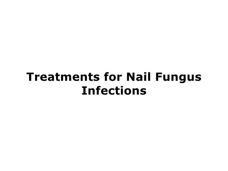 Treatments for Nail Fungus Infections