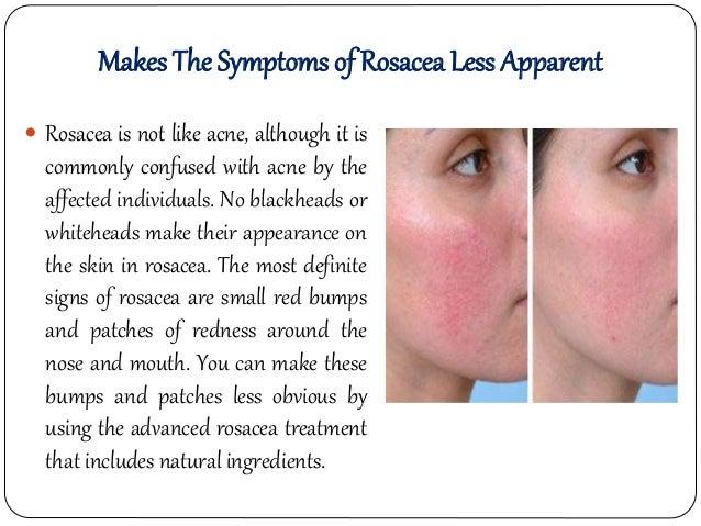 rosacea topical treatment