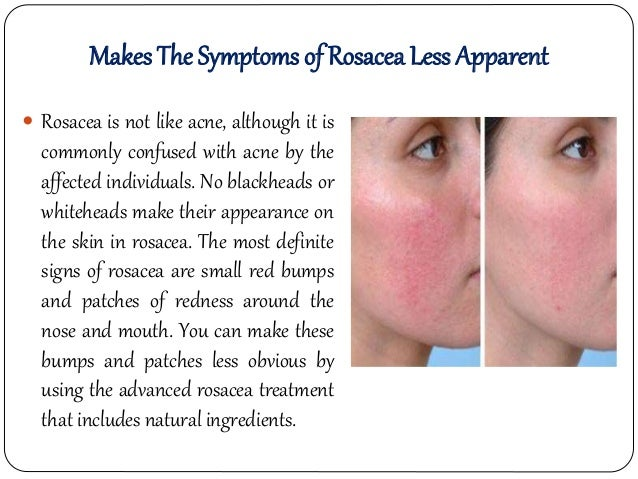 Image result for rosacea treatment photos