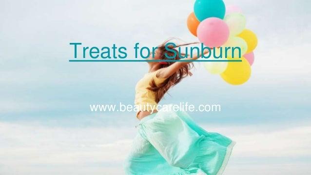 Treats for Sunburn www.beautycarelife.com