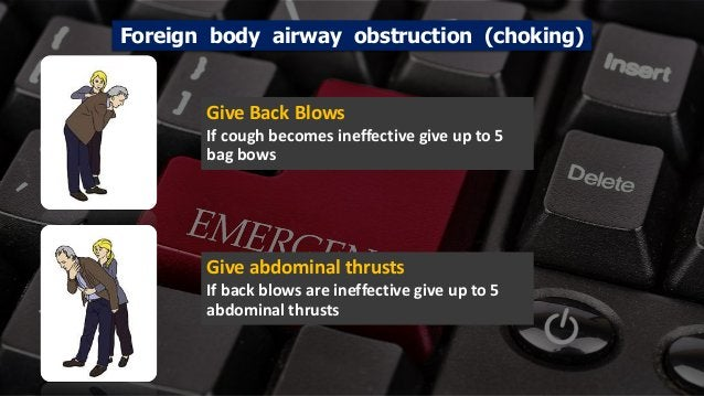Free PowerPoint Templates Foreign body airway obstruction (choking) Give Back Blows If cough becomes ineffective give up t...