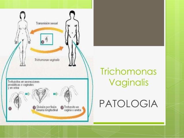 Trichomonas Vaginalis PATOLOGIA