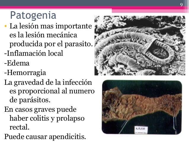 Patogenia • La lesión mas importante es la lesión mecánica producida por el parasito. -Inflamación local -Edema -Hemorragi...