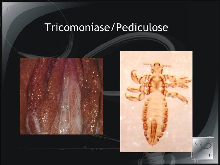 Tricomoníase/Pediculose