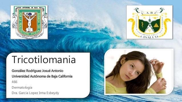 Tricotilomania González Rodríguez Josué Antonio Universidad Autónoma de Baja California 466 Dermatología Dra. Garcia Lopez...