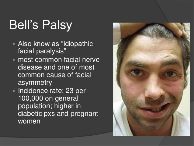 Facial paralysis and neuralgia photo 484