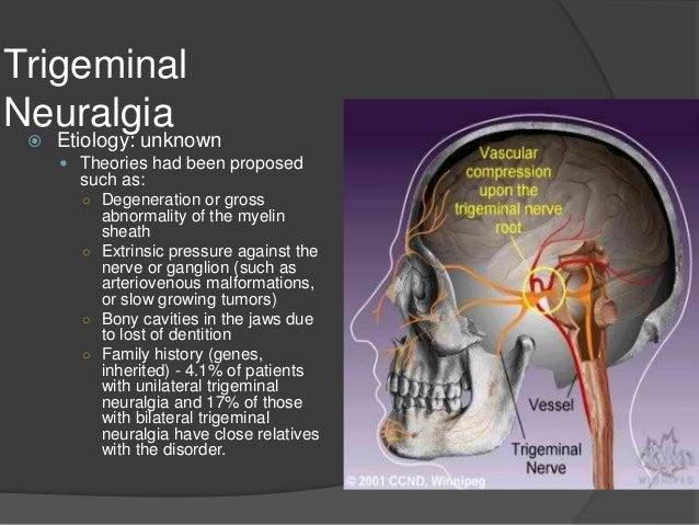 Acoustic Neuroma  Vestibular Disorders Association