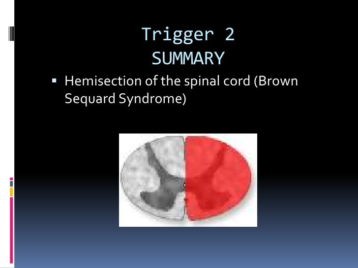 Trigger 2                SUMMARY  Hemisection of the spinal cord (Brown   Sequard Syndrome)