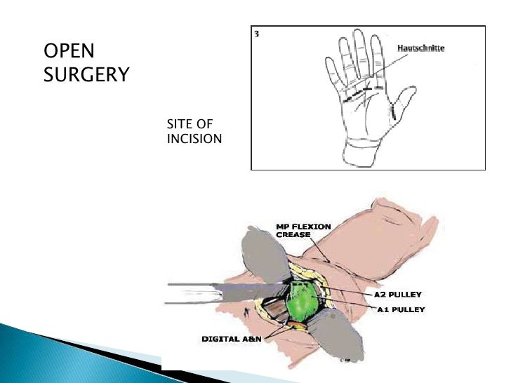 OPENSURGERY SITE OF INCISION ...