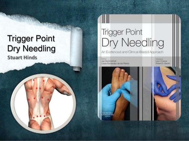 Trigger Point Dry Needling Stuart Hinds