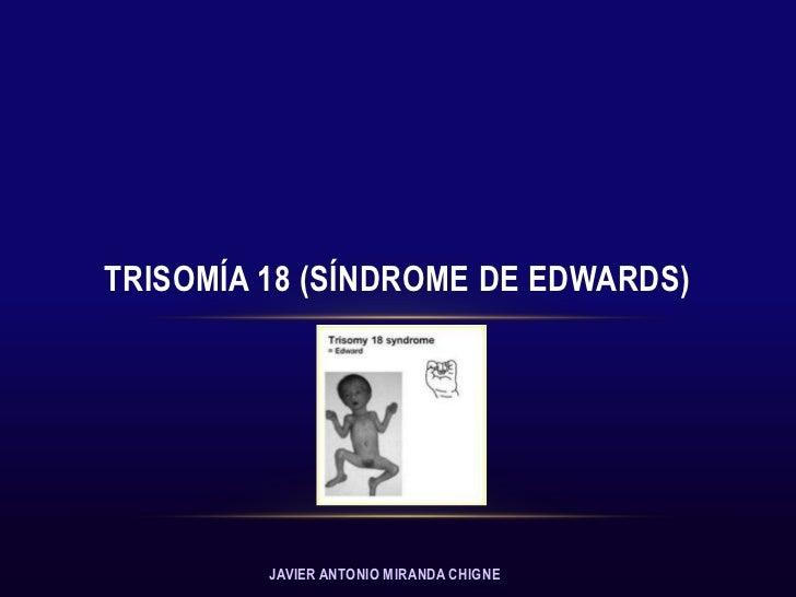 TRISOMÍA 18 (SÍNDROME DE EDWARDS)         JAVIER ANTONIO MIRANDA CHIGNE