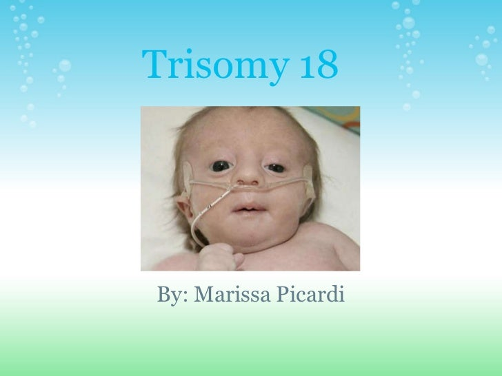 trisomy 18 essay Trisomy 18 occurs when a baby has three chromosomes in the eighteenth position instead of the normal two it is also called edwards syndrome (or edward's syndrome.