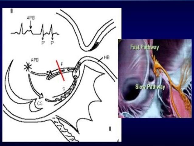 Taquicardia supraventricular paroxistica