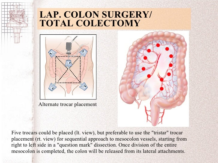 Trocar/Port Placement for the Procedure: General Strategies