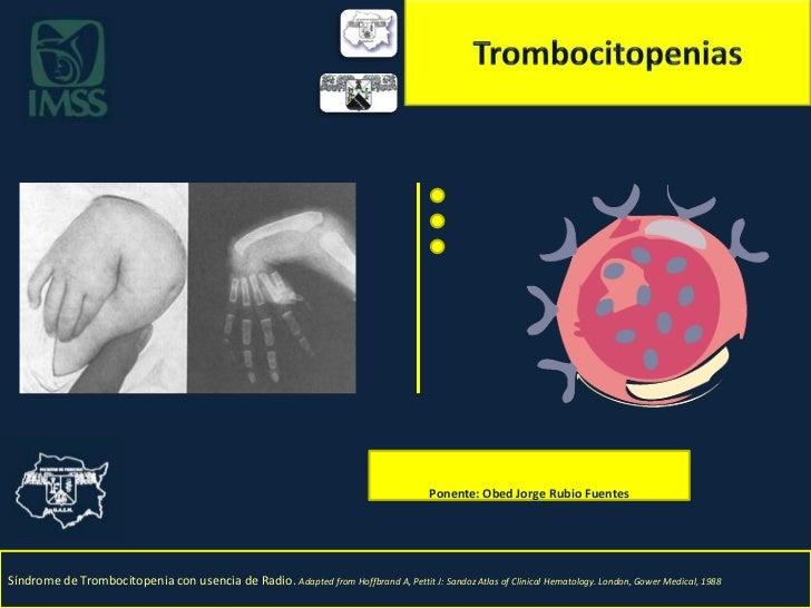 Trombocitopenias<br />Ponente: Obed Jorge Rubio Fuentes<br />Síndrome de Trombocitopenia con usencia de Radio. Adapted fro...