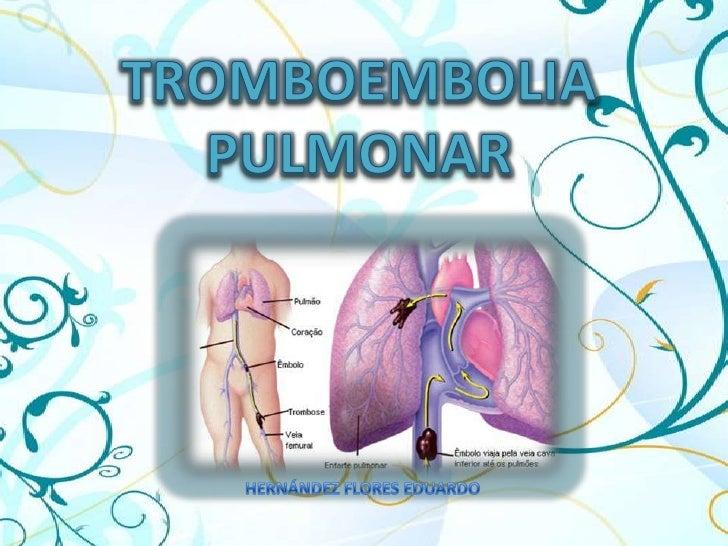 TROMBOEMBOLIA PULMONAR<br />HERNÁNDEZ FLORES EDUARDO<br />