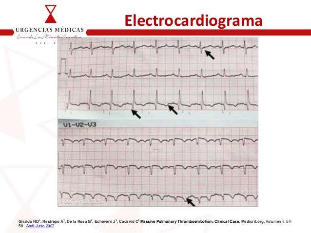 Electrocardiograma Giraldo ND1, Restrepo A2, De la Rosa G2, Echeverri J2, Cadavid C2 Massive Pulmonary Thromboembolism, Cl...