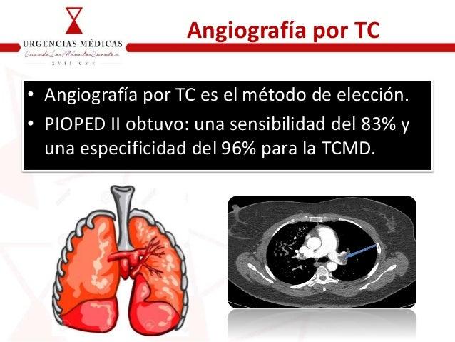 Angiografía por TC • Angiografía por TC es el método de elección. • PIOPED II obtuvo: una sensibilidad del 83% y una espec...
