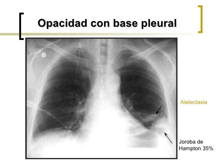 Opacidad con base pleural Joroba de Hampton 35% Atelectasia