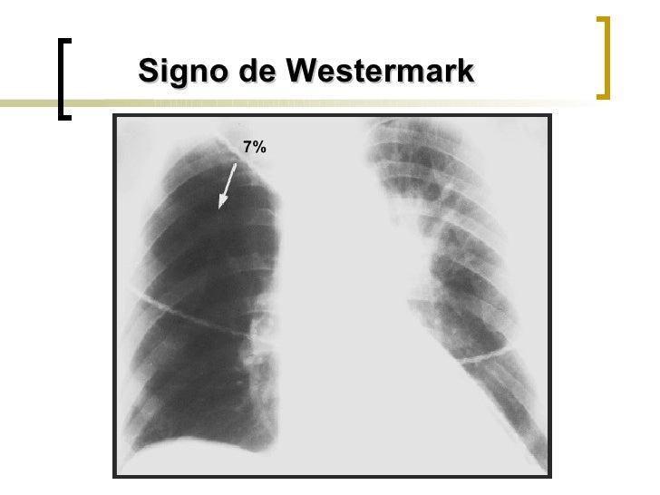 Signo de Westermark 7%
