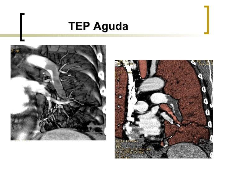 TEP Aguda