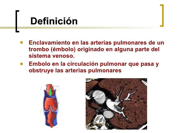 Definición <ul><li>Enclavamiento en las arterias pulmonares de un trombo (émbolo) originado en alguna parte del sistema ve...