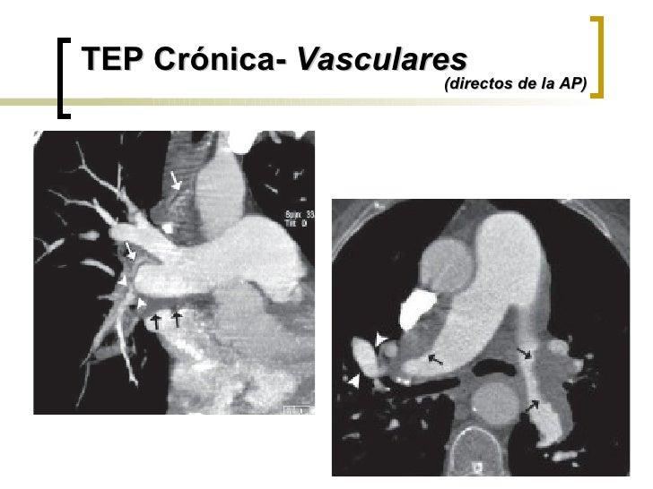 TEP Crónica-  Vasculares (directos de la AP)