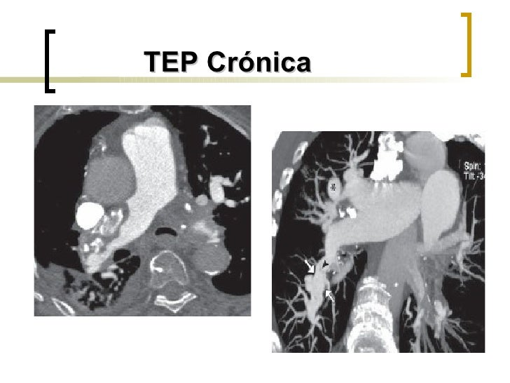 TEP Crónica