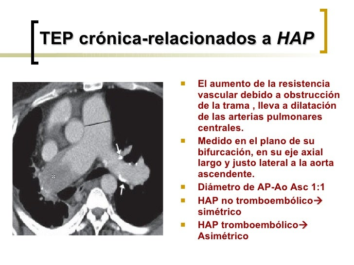 TEP crónica-relacionados a  HAP <ul><li>El aumento de la resistencia vascular debido a obstrucción de la trama , lleva a d...