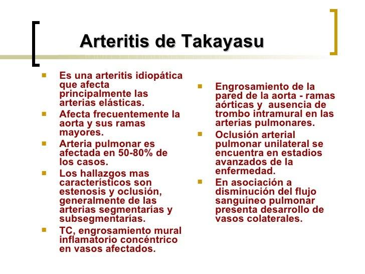 <ul><li>Es una arteritis idiopática que afecta principalmente las arterias elásticas. </li></ul><ul><li>Afecta frecuenteme...