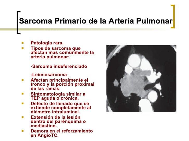 <ul><li>Patología rara. </li></ul><ul><li>Tipos de sarcoma que afectan mas comúnmente la arteria pulmonar:  </li></ul><ul>...