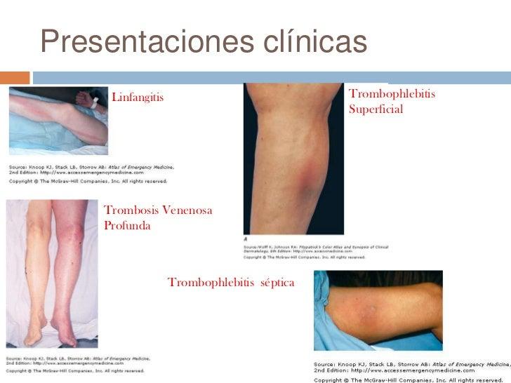 La agudización de la enfermedad varicosa