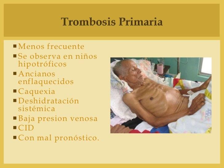 Los métodos públicos en el tratamiento varikoza de las venas