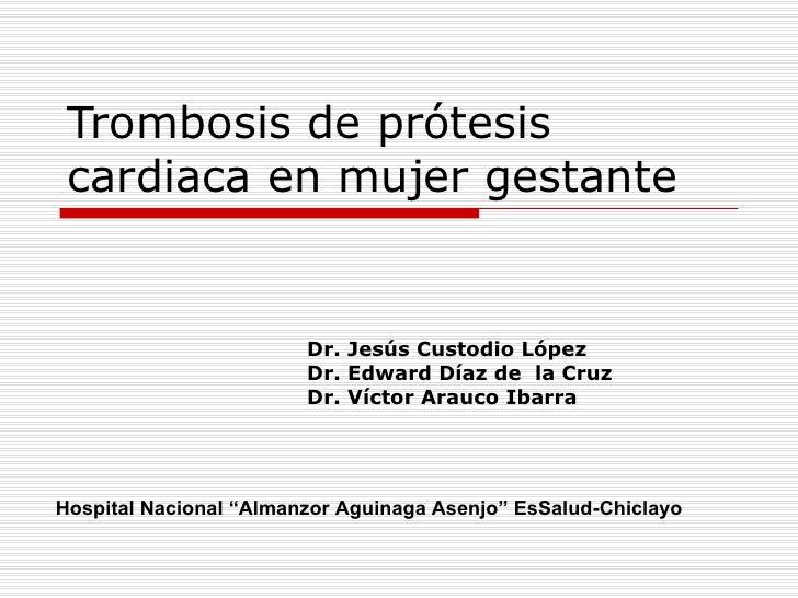 Trombosis de prótesis  cardiaca en mujer gestante                           Dr. Jesús Custodio López                      ...