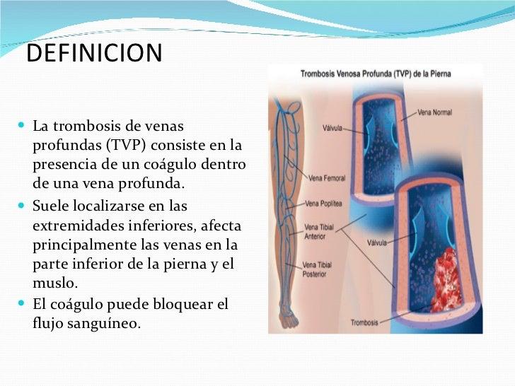 Las medicinas contra la enfermedad varicosa