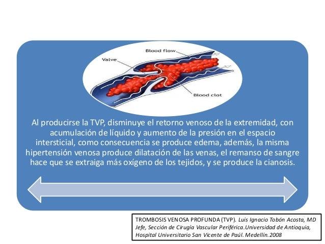 La trombosis después de la desaparición del pólipo