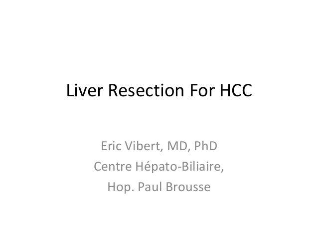 Liver Resection For HCC Eric Vibert, MD, PhD Centre Hépato-Biliaire, Hop. Paul Brousse