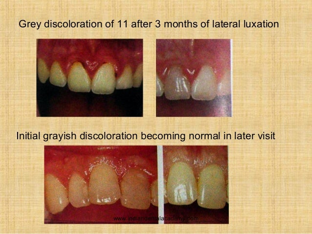 tooth luxation