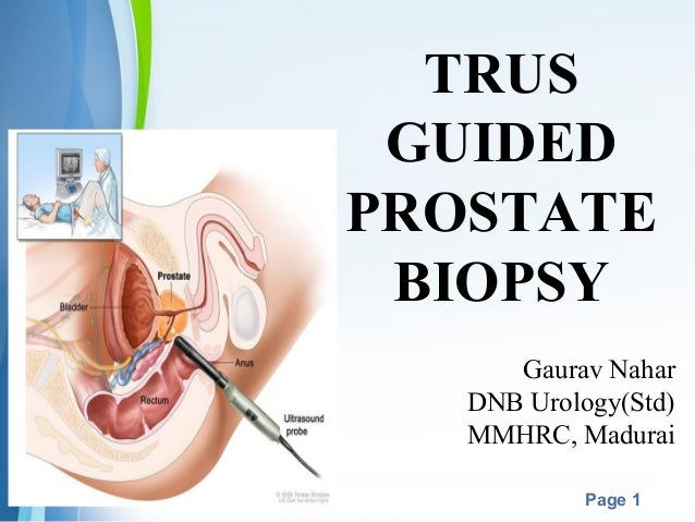 Powerpoint Templates Page 1 TRUS GUIDED PROSTATE BIOPSY Gaurav Nahar DNB Urology(Std) MMHRC, Madurai