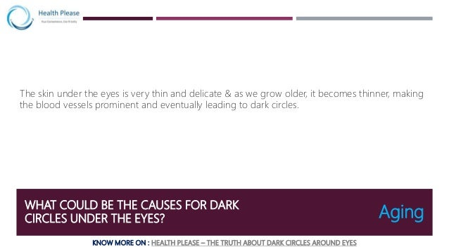 Know the causes of Dark Circles and measures to avoid it ...