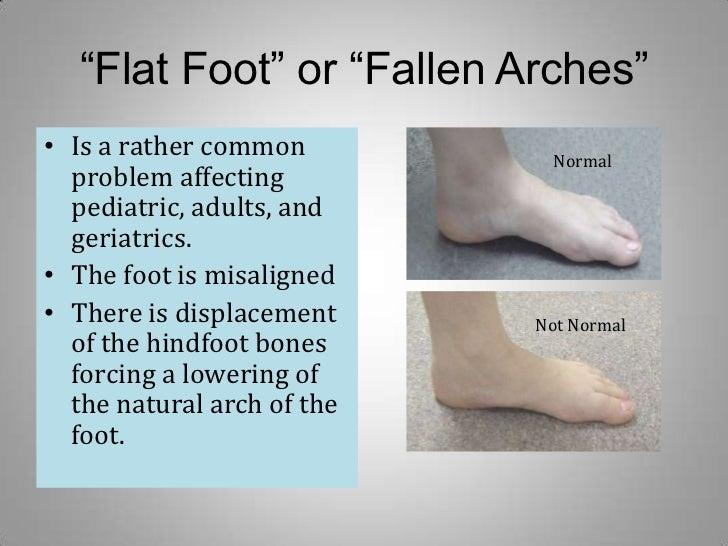 3 Flat Foot Or