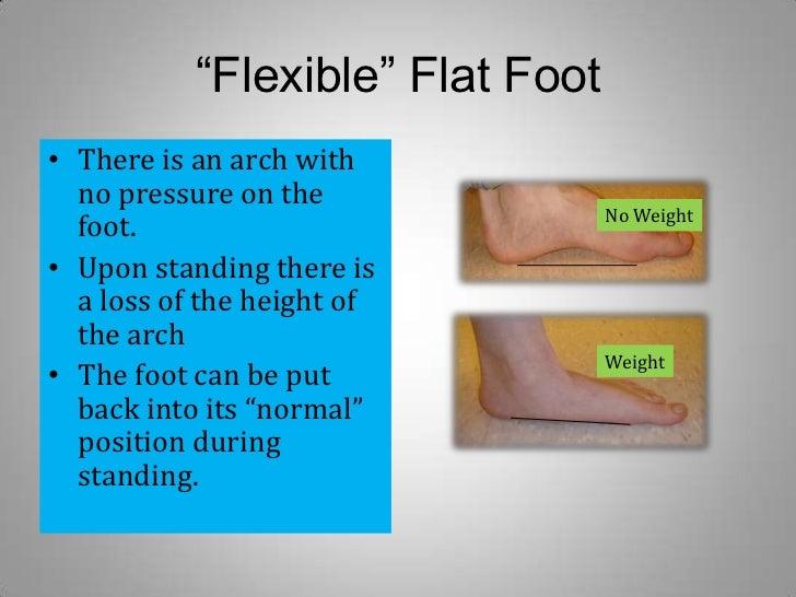 Flexible Flat Foot In Adults