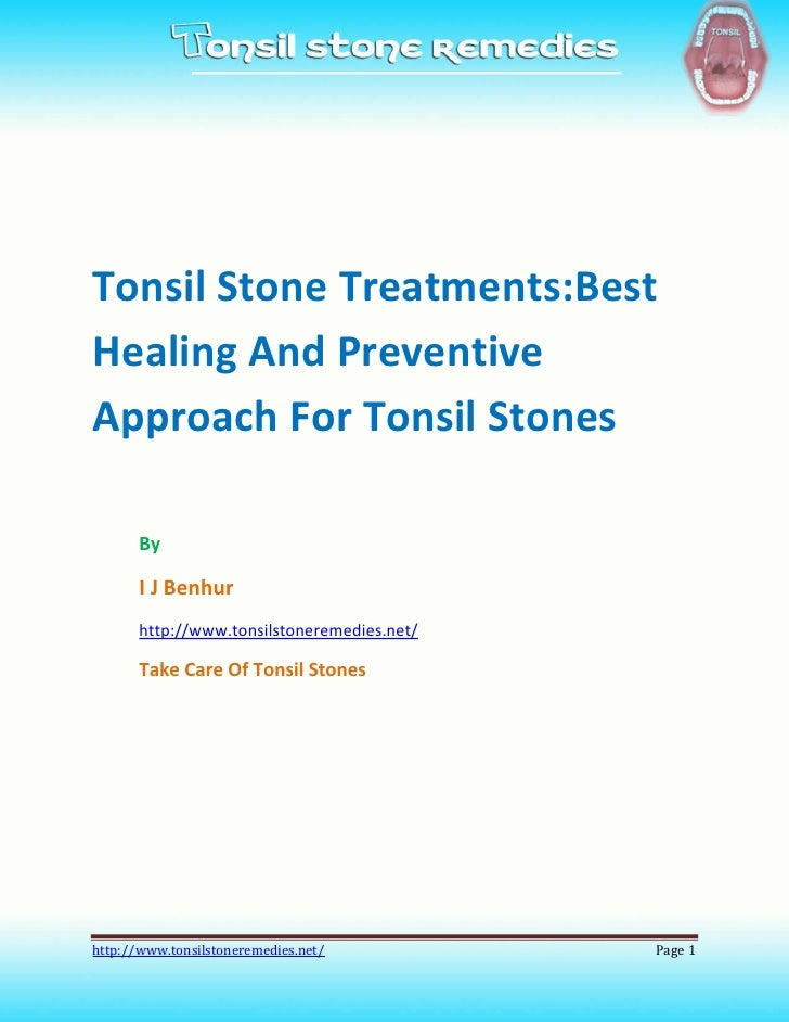 Tonsil Stone Treatments:BestHealing And PreventiveApproach For Tonsil Stones       By       I J Benhur       http://www.to...