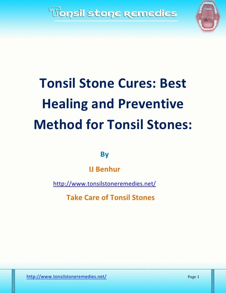 Tonsil Stone Cures: Best    Healing and Preventive   Method for Tonsil Stones:                                By          ...