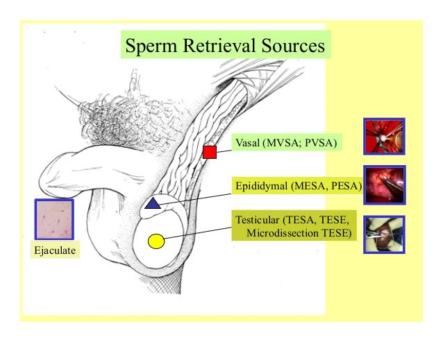 Ass in sperm