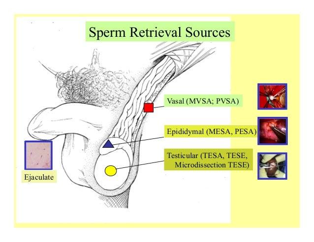 Ass in sperm