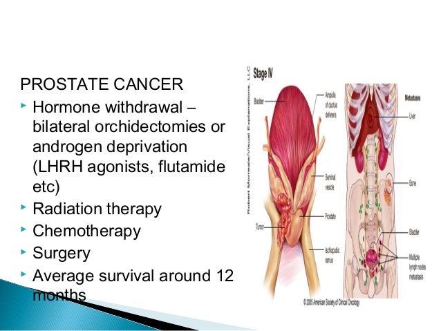 Metastases Of Spine