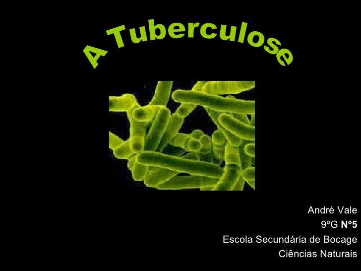 André Vale 9ºG  Nº5 Escola Secundária de Bocage Ciências Naturais A Tuberculose