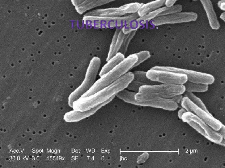 ¿Qué es la tuberculosis?• La tuberculosis o tisis, es una enfermedad causada  por una infección bacteriana INFECTO-CONTAGI...